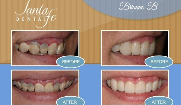 tooth replacement edmond