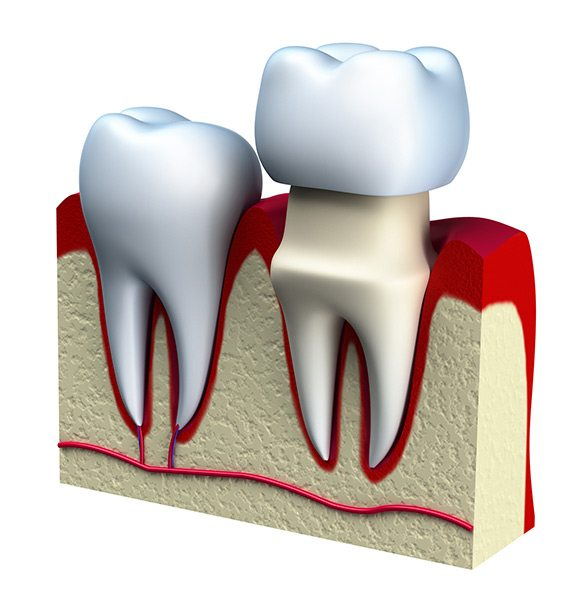 Santa Fe dental implant