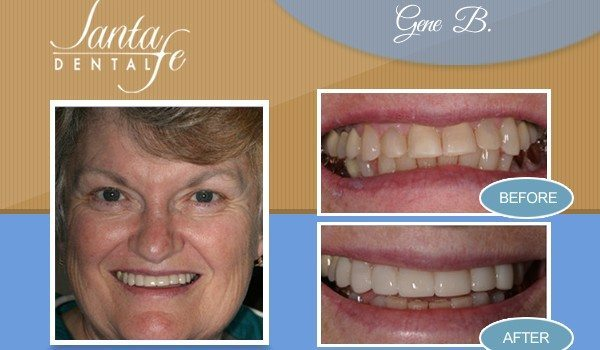 Edmond Veneer Dentist
