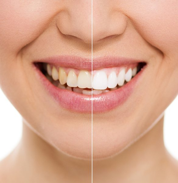 Edmond Teeth Whitening